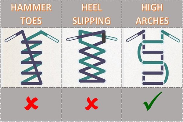 correct running shoes lacing for high arched feet